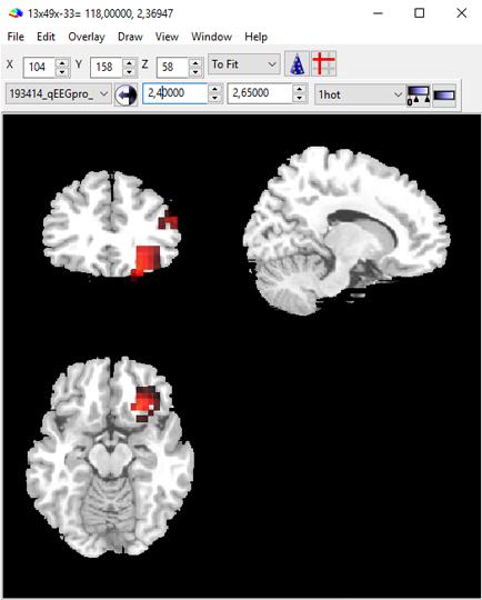 MRIcron1